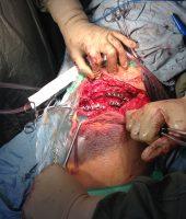 მენჯის ძვლის ოსტეოსინთეზი ოპერაცია