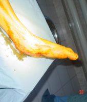 ქუსლის ძვლის გადატანილი ინფექციის ფონზე დეფექტი ოპერაციამდე